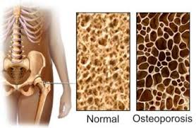 Osteoporosis: Verdades y Falsedades